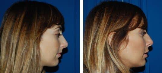 Photo de rhinoplastie prise de profil avant et après