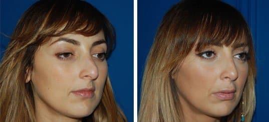 Photo de rhinoplastie prise de trois quart avant et après