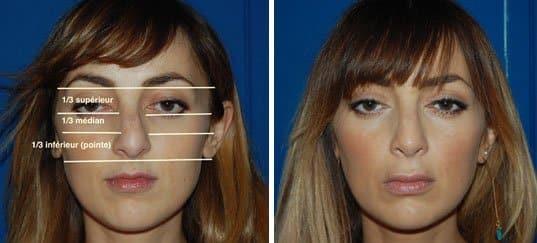 photo du visage d'une femme pris de face avant et après une rhinoplastie