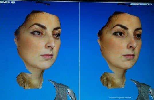 Simulation 3D d'une rhinoplastie : vue de trois quart