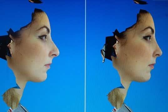 Simulation 3D d'une rhinoplastie : vue de profil
