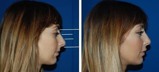 photo du visage d'une femme pris de profil avant et après une rhinoplastie