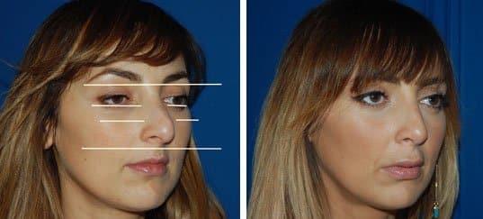 photo du visage d'une femme pris de 3/4 avant et après une rhinoplastie
